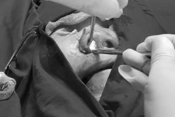 Đau đầu đi khám, người phụ nữ phải cắt nửa hàm vì ung thư