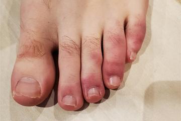 'Ngón chân Covid', triệu chứng lạ ở bệnh nhân nhiễm nCoV