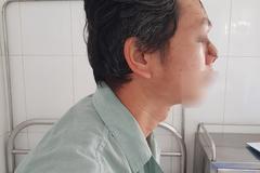 Người đàn ông Hà Nội phải cắt cụt mũi vì ung thư