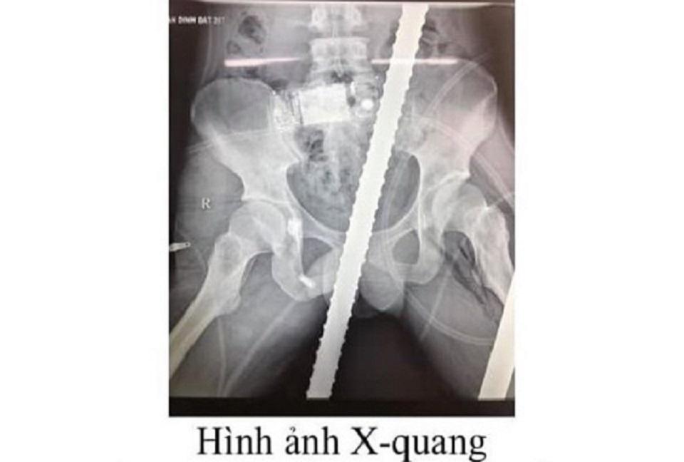 Cứu sống thanh niên bị 2 thanh sắt đâm xuyên tầng sinh môn, bụng, ngực, đùi