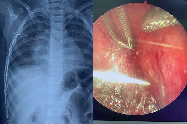 Bác sĩ kể hành trình mò kim trong ngực bé gái 3 tuổi