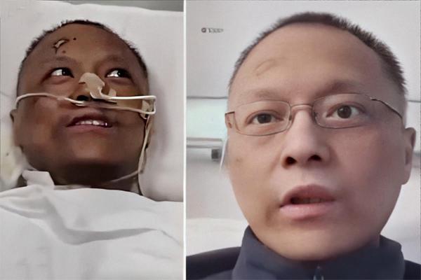 Diễn biến mới vụ 2 bác sĩ Trung Quốc bị đổi màu da do Covid-19