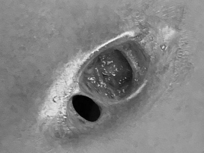 Người phụ nữ bị thủng ngực sau 2 lần tiêm silicon Trung Quốc