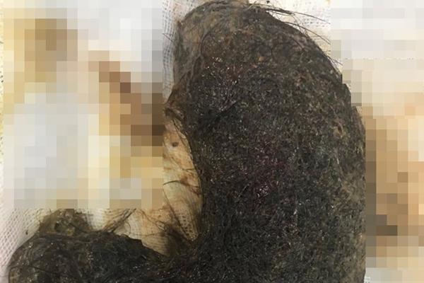 Bé gái ở Hà Nội ăn tóc suốt 9 năm