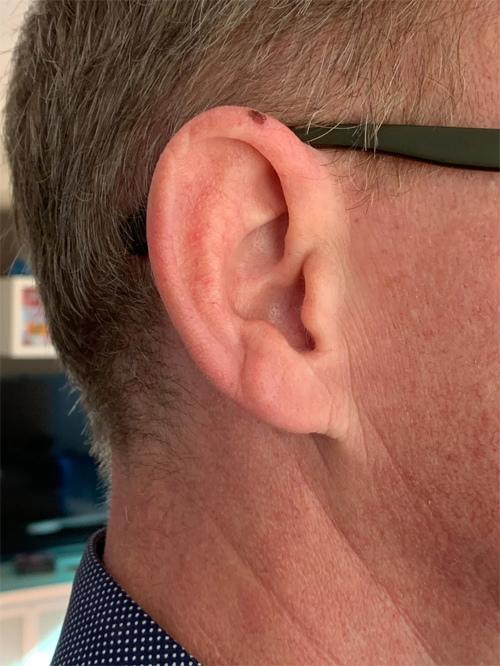 Người đàn ông phải cắt một phần tai khi phát hiện chấm đổi màu trên da