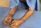 30 bác sĩ chạy đua nối liền 2 bàn tay đứt lìa cho người đàn ông