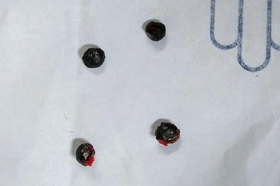 Súng kíp bất ngờ phát nổ, nam thanh niên bị 5 viên đạn bắn vỡ cổ tay