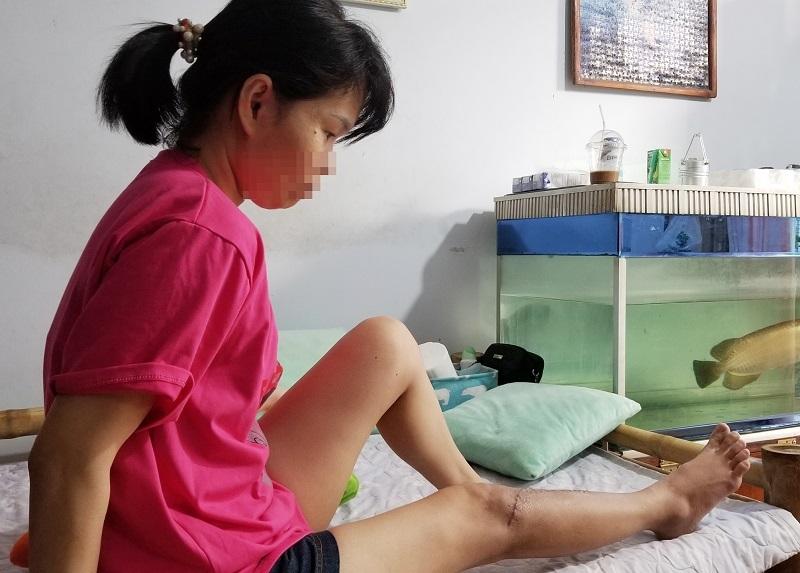 Nữ kế toán bị nam quản lý công ty đánh gãy chân ở Đà Nẵng