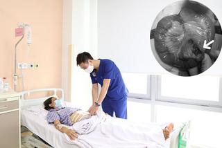 Người phụ nữ Ninh Bình bị thối một đoạn ruột do thức ăn