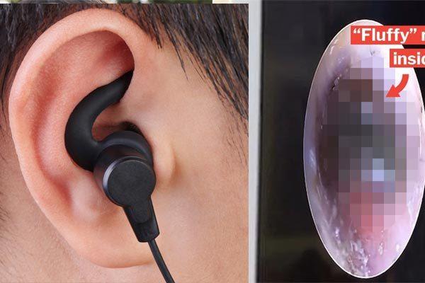 Bé trai mọc nấm trong tai vì 'nghiện' đeo tai nghe