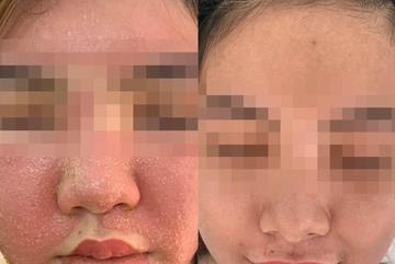 Cô gái 21 tuổi nhận cái kết đắng khi đắp mặt nạ đông y làm trắng da