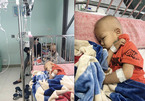 Hai bé trai song sinh ung thư máu từng ngày giành giật sự sống