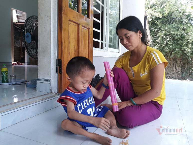 Mắc bệnh hiểm, bé trai 10 tuổi như trẻ lên 3, hơn 20 lần gãy tay chân