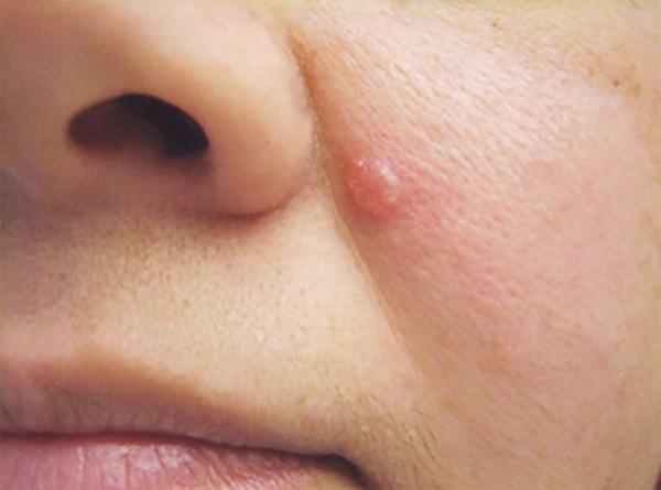 Ba dấu hiệu dễ bỏ qua giúp phát hiện sớm ung thư da