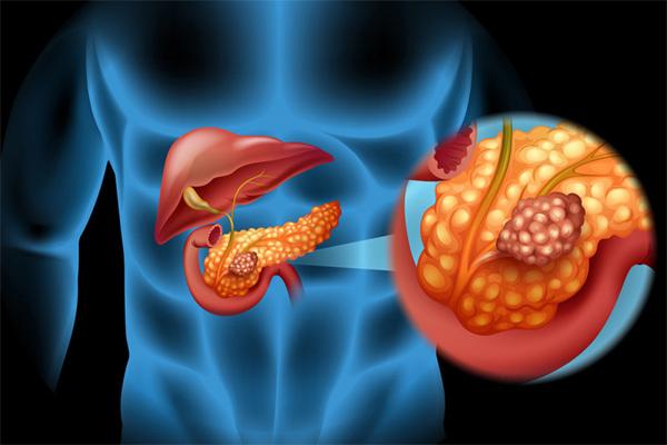 Ung thư tụy, căn bệnh nguy hiểm, rất dễ bị bỏ qua dấu hiệu sớm