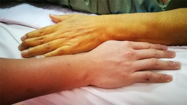Màu da thay đổi hé lộ nhiều bệnh nguy hiểm