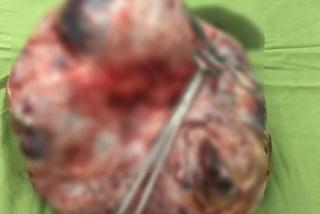 Người phụ nữ mang khối u buồng trứng nặng gần 8kg