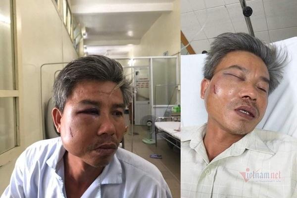thao bien quang cao trai phep nhan vien cay xanh o hue bi danh nhap vien Nhân viên cây xanh bị đánh biến dạng mặt khi chụp ảnh hiện trường
