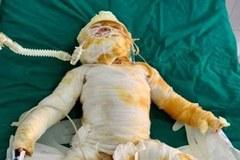 Vụ chập điện cháy nhà: Bé gái 9 tháng tuổi đã qua đời