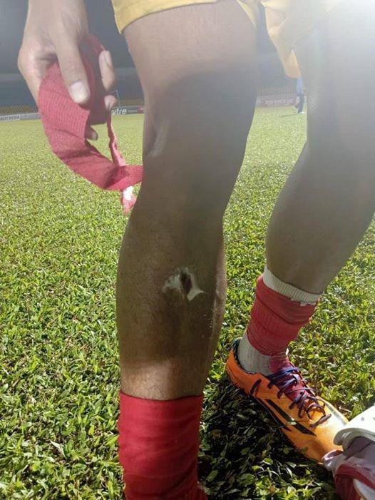 Rợn người với pha va chạm khiến cầu thủ Quảng Ninh gãy chân