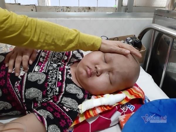 Nước mắt tủi hờn của em bé u não mồ côi cha, mẹ có gia đình mới