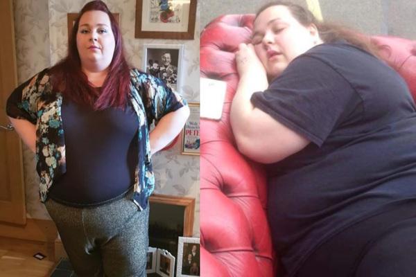 Giảm 63kg, bà mẹ gặp nguy hiểm với phần da thừa