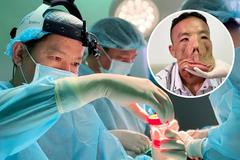 Tìm cách tái tạo gương mặt một bệnh nhân bị bệnh hiếm gặp