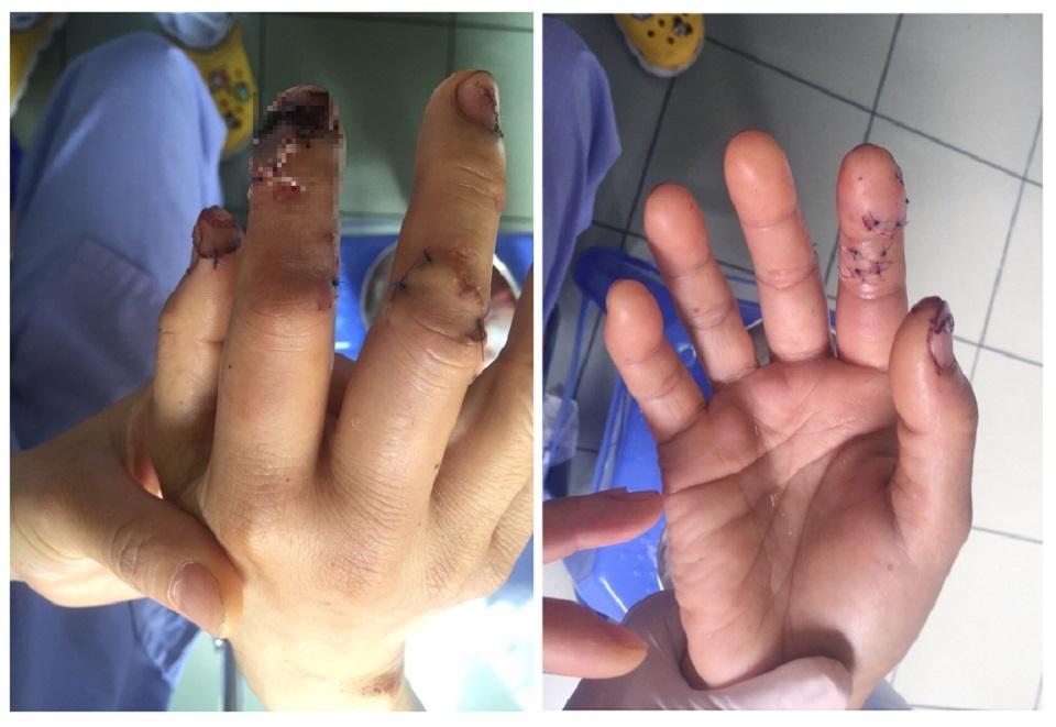 Dập nát ngón tay do bất cẩn khi sử dụng máy xay sinh tố