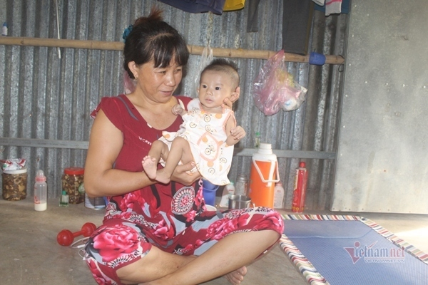 Bé gái 5 tháng tuổi nặng 4kg cần 55 triệu đồng mổ tim gấp