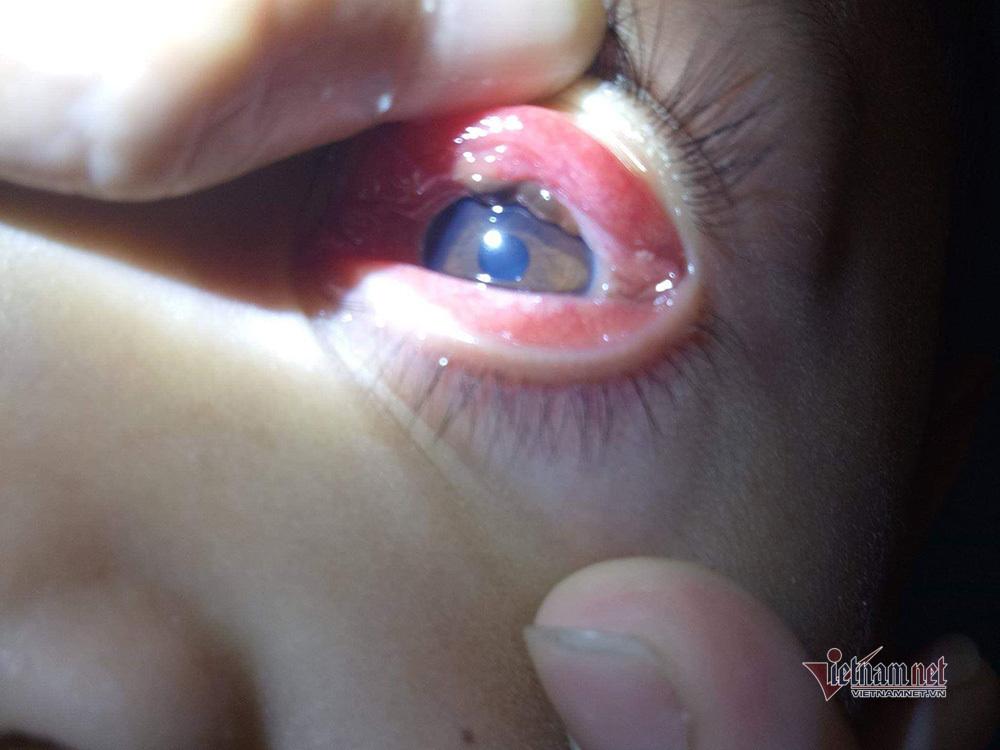 Gắp một con vắt sống trong mắt bệnh nhân 8 tuổi