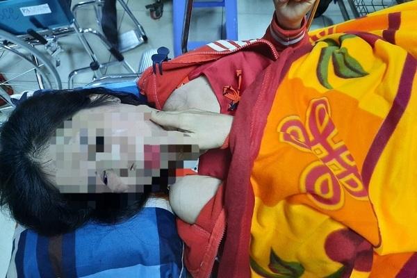 Người phụ nữ bị chồng hờ đập đầu vào tường, dẫm đạp bất tỉnh
