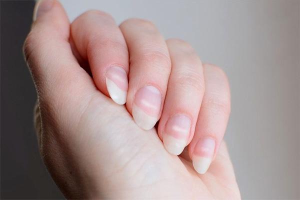 Bất thường trên móng tay tiết lộ sức khỏe của bạn