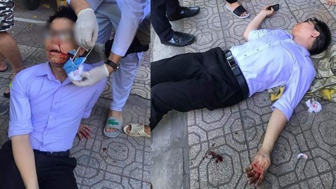 Một cán bộ tư pháp ở Thái Bình bị hành hung khi đang tố cáo lãnh đạo