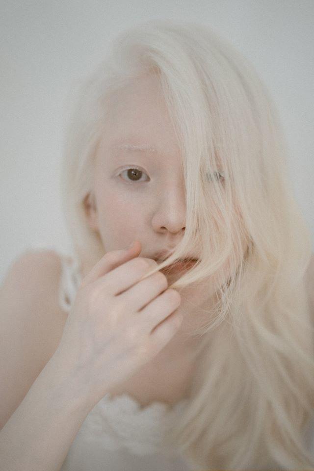 Cô gái Việt mắc bạch tạng thành mẫu ảnh khiến bao người ngoái nhìn