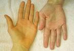3 vàng 1 đen, dấu hiệu cảnh báo gan của bạn đang suy mòn