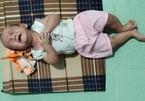 Xót thương bé trai 6 tháng tuổi bị mù lòa, tụt lưỡi do mắc hội chứng hiếm gặp