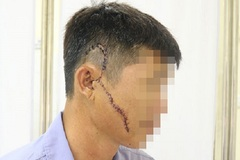 Người đàn ông bị khung tôn sắt nặng 50kg rơi trúng mặt