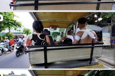 Du khách ngã gãy xương vai khi chơi phao kéo trên đảo Cô Tô