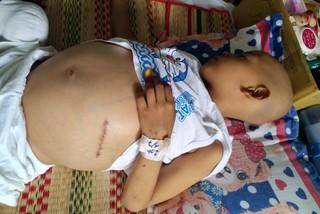 Xót xa đứa trẻ 7 tuổi mắc bệnh hiểm nghèo, bụng phình to đau đớn