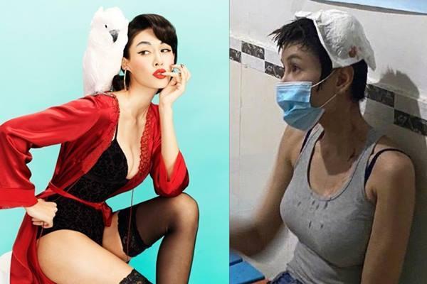 Đả nữ phim Thành Long bị thương nặng ở đầu khi quay phim