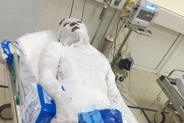 Tạm giữ đối tượng đổ xăng đốt cháy người đàn ông ở Nghệ An