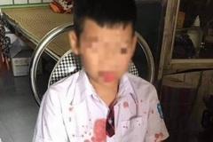 Bênh con, phụ huynh đánh trẻ lớp 1 đến nhập viện