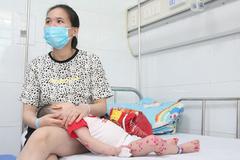 Tay chân miệng tăng gấp 6, có trẻ phải dùng tim phổi nhân tạo
