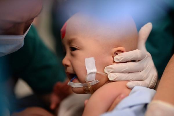 Hình ảnh trong phòng mổ tách hai bé song sinh ở TP.HCM