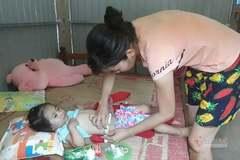 Vết sẹo dài trên ngực cùng dị tật bẩm sinh đẩy bé gái 3 tuổi vào cảnh khốn cùng