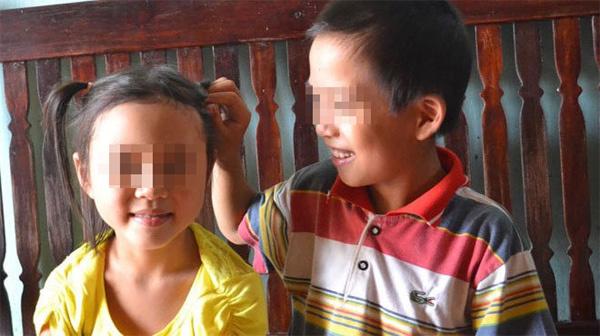 Cuộc đời mới của những ca song sinh nổi tiếng đã tách rời ở Việt Nam