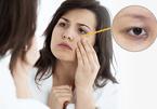 Quầng mắt thâm là dấu hiệu của 5 bệnh nguy hiểm