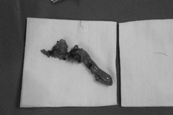 Mảnh xương 'chu du' khắp người bé trai 5 tuổi