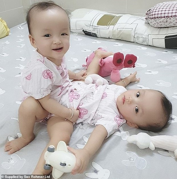 Conjoined twins successfully separated in Ho Chi Minh City