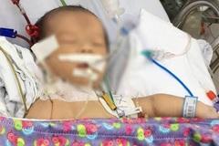 Sinh ra khỏe mạnh, ba ngày sau bé trai bị bệnh hiếm gặp